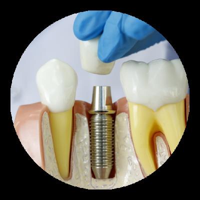 Korona na implant stomatologiczny
